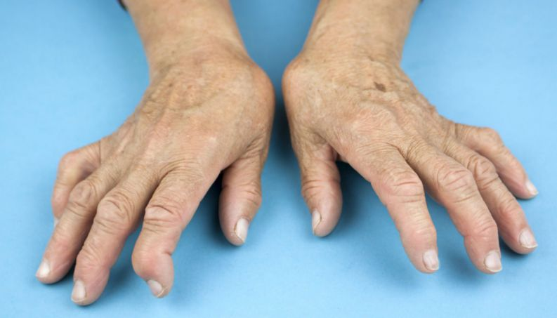 artrite-reumatoide-1016-1400x800.jpg