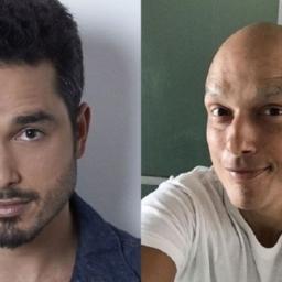 Léo Rosa: actor luta contra o cancro e encanta fãs ao surgir num vídeo a cantar | COM VÍDEO!